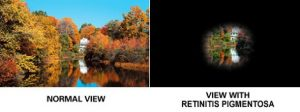 "Two images side by side, left image is of a lake with waterfall surrounded by autumnal trees. The right side of the image has all but a small proportion of the image blacked out, just showing he waterfall part along with the caption ""view for someone with Retinitus Pigmentosa"